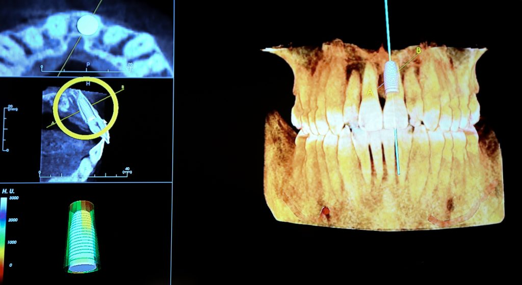What is a Prosthodontist?