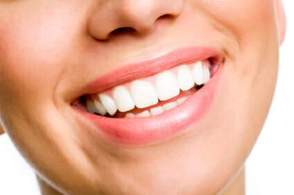 Teeth Straightening Systems
